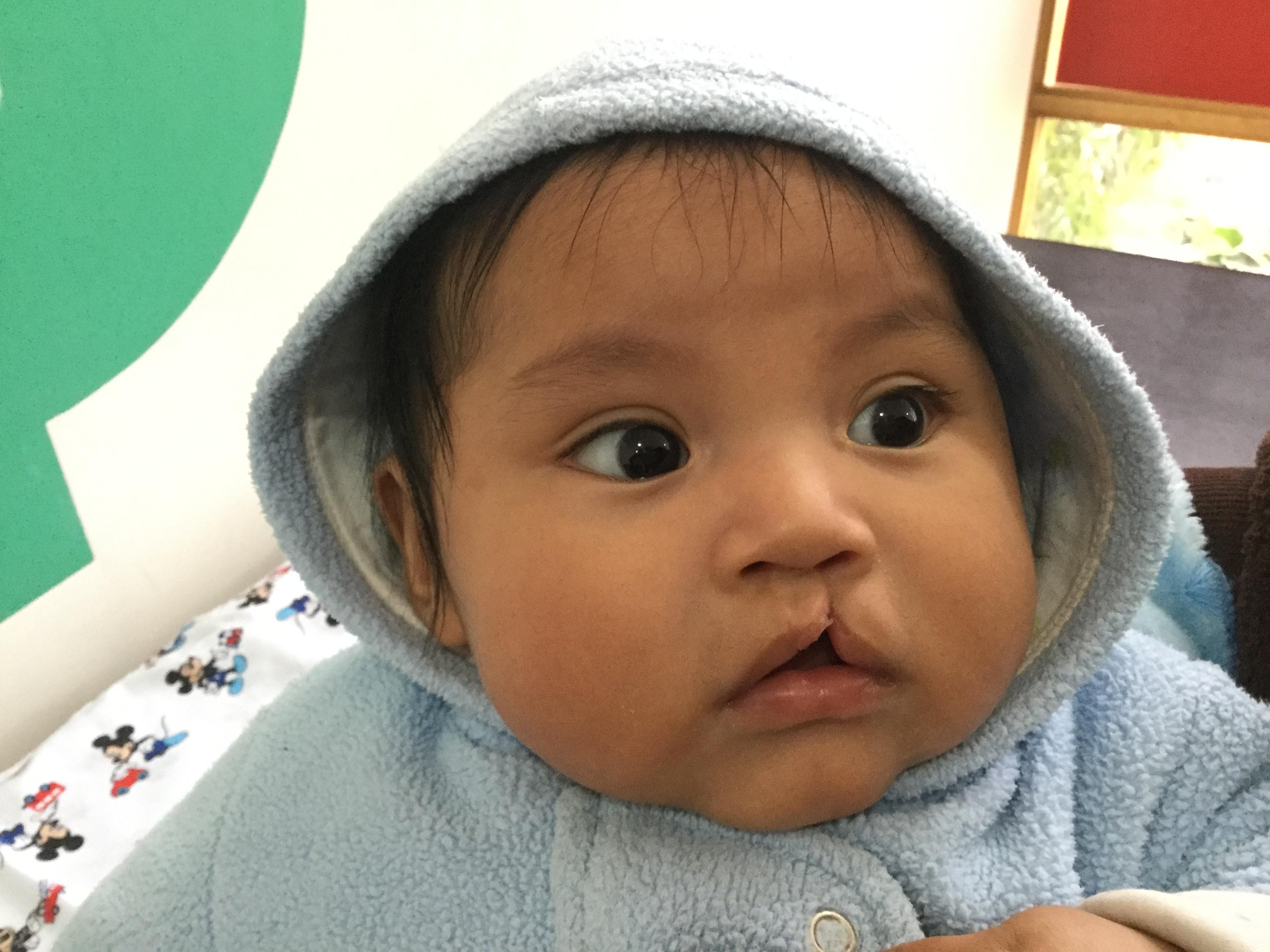 Paz holandesa medische hulp voor peruaanse kinderen perucleftlip img1050 thecheapjerseys Images